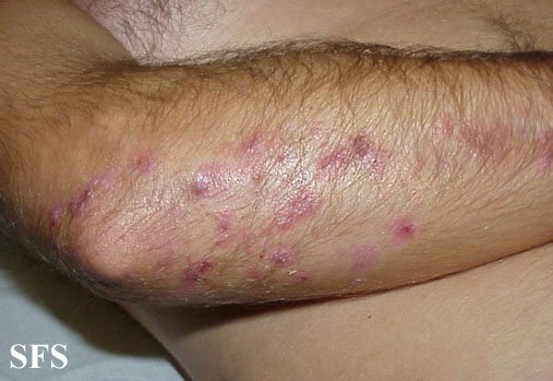 Dermatitis herpetiformis on the lower arm