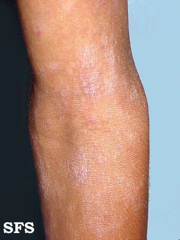 Atopic dermatitis on the inner side of the elbow