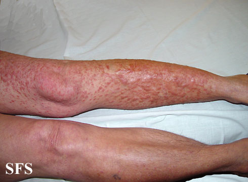 leiomyoma-multiple cutaneous leiomyomas(leiomyoma-multiple_cutaneous_leiomyomas2.jpg)