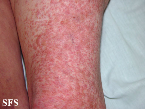 leiomyoma-multiple cutaneous leiomyomas(leiomyoma-multiple_cutaneous_leiomyomas4.jpg)