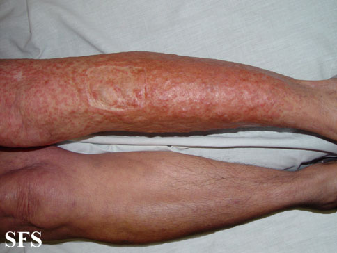leiomyoma-multiple cutaneous leiomyomas(leiomyoma-multiple_cutaneous_leiomyomas5.jpg)