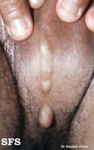 scrotal cyst