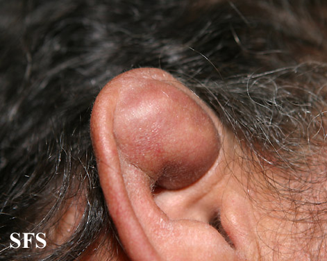 pseudocyst of the ear(pseudocyst_of_the_ear3.jpg)