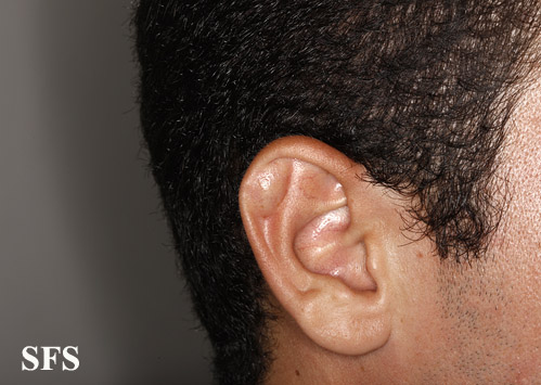pseudocyst of the ear(pseudocyst_of_the_ear4.jpg)