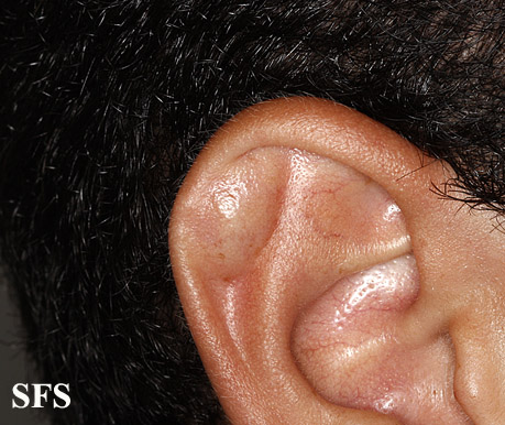 pseudocyst of the ear(pseudocyst_of_the_ear5.jpg)