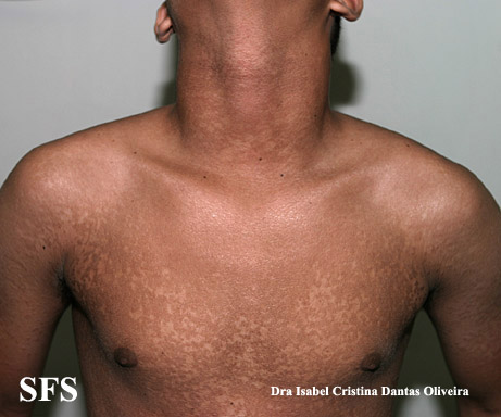 papilomatosis confluentes and reticulate(papilomatosis_confluentes_and_reticulate41.jpg)
