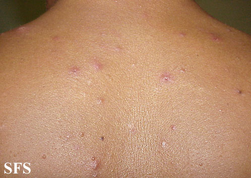 eosinophilic folliculitis of hiv aids(eosinophilic_folliculitis_of_hiv_aids4.jpg)