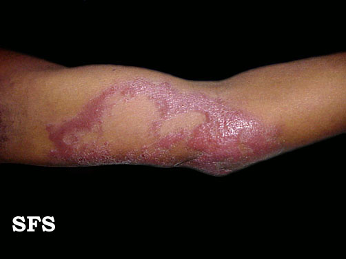 leprosy borderline(leprosy_borderline1.jpg)