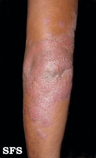 leprosy borderline(leprosy_borderline8.jpg)