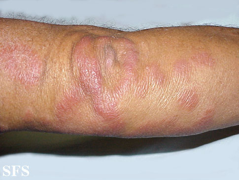 leprosy borderline(leprosy_borderline14.jpg)