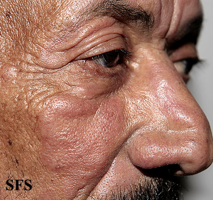 leprosy borderline(leprosy_borderline47.jpg)