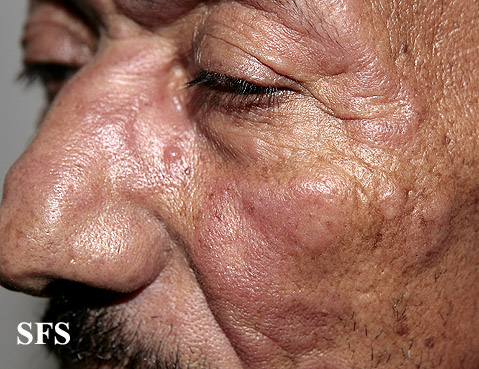 leprosy borderline(leprosy_borderline48.jpg)