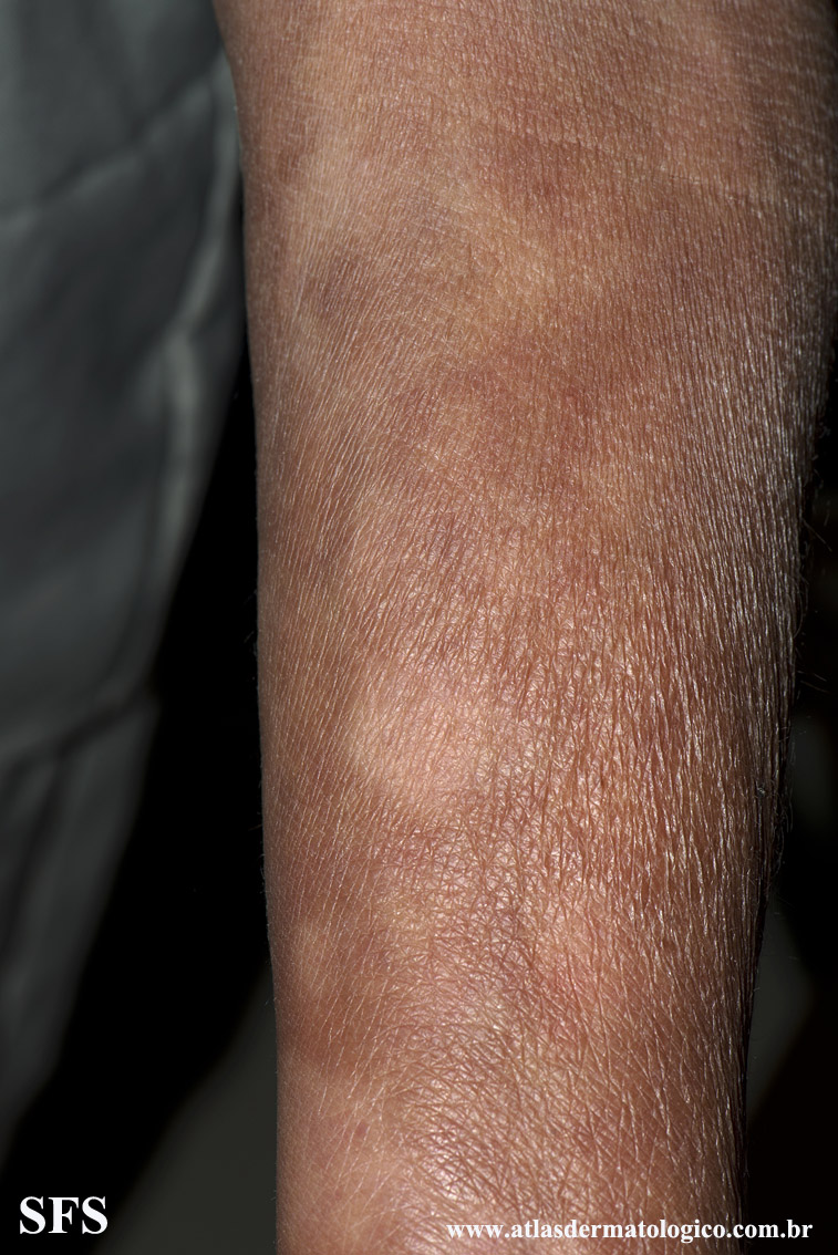 leprosy borderline(leprosy_borderline75.jpg)