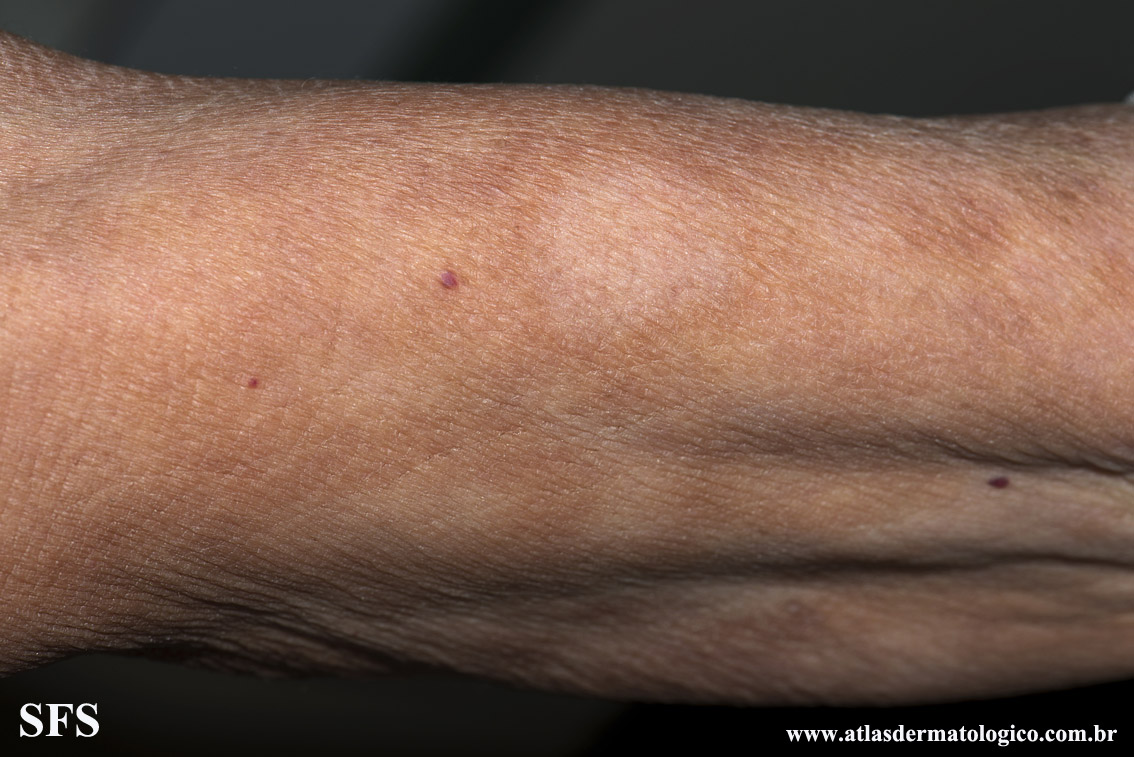 leprosy borderline(leprosy_borderline74.jpg)