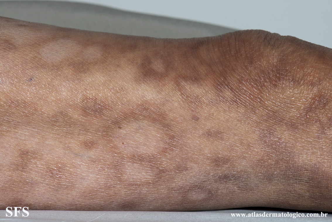 leprosy borderline(leprosy_borderline77.jpg)