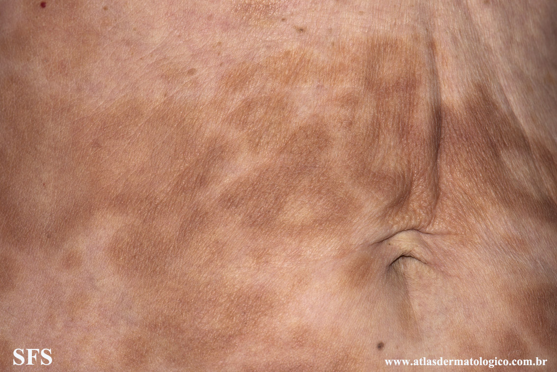 leprosy borderline(leprosy_borderline70.jpg)