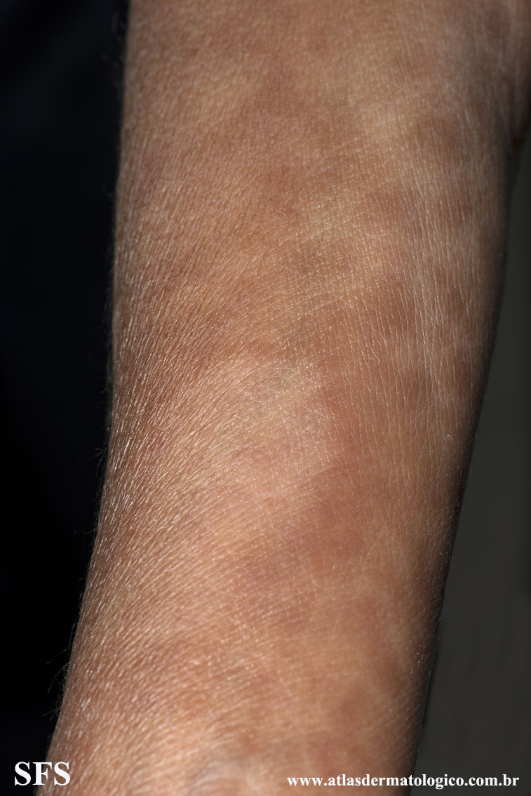 leprosy borderline(leprosy_borderline72.jpg)