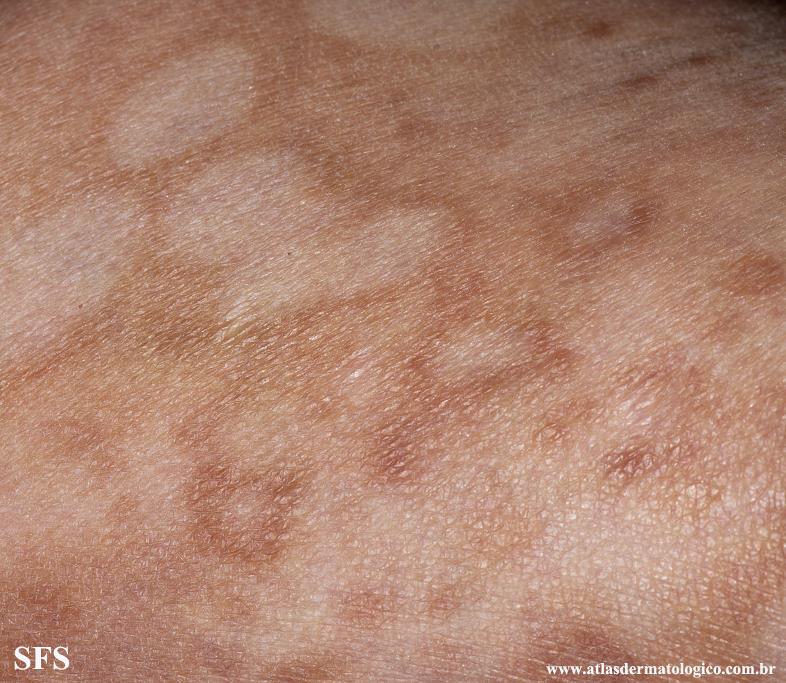 leprosy borderline(leprosy_borderline80.jpg)