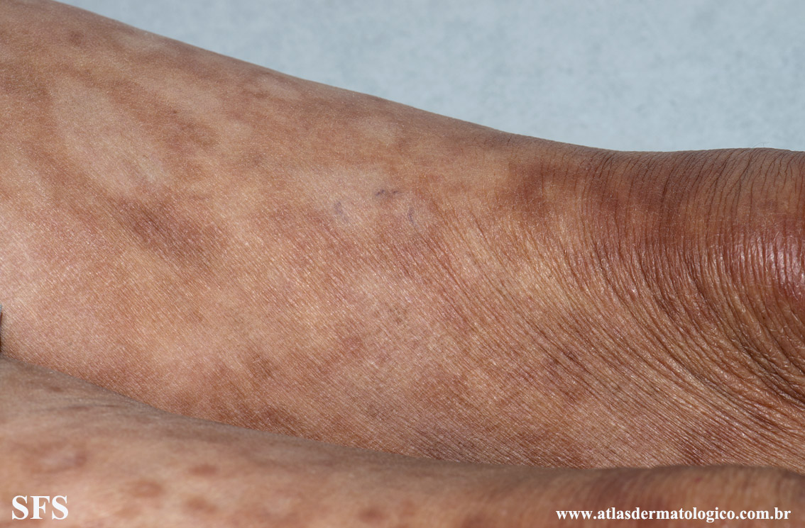 leprosy borderline(leprosy_borderline82.jpg)