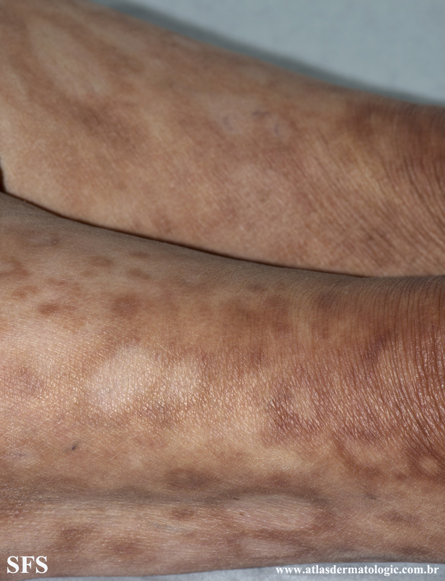 leprosy borderline(leprosy_borderline84.jpg)