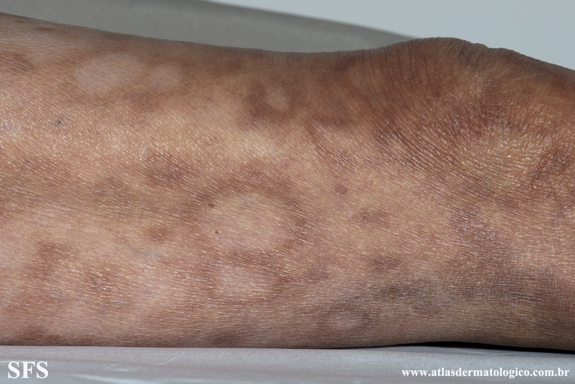 leprosy borderline(leprosy_borderline81.jpg)