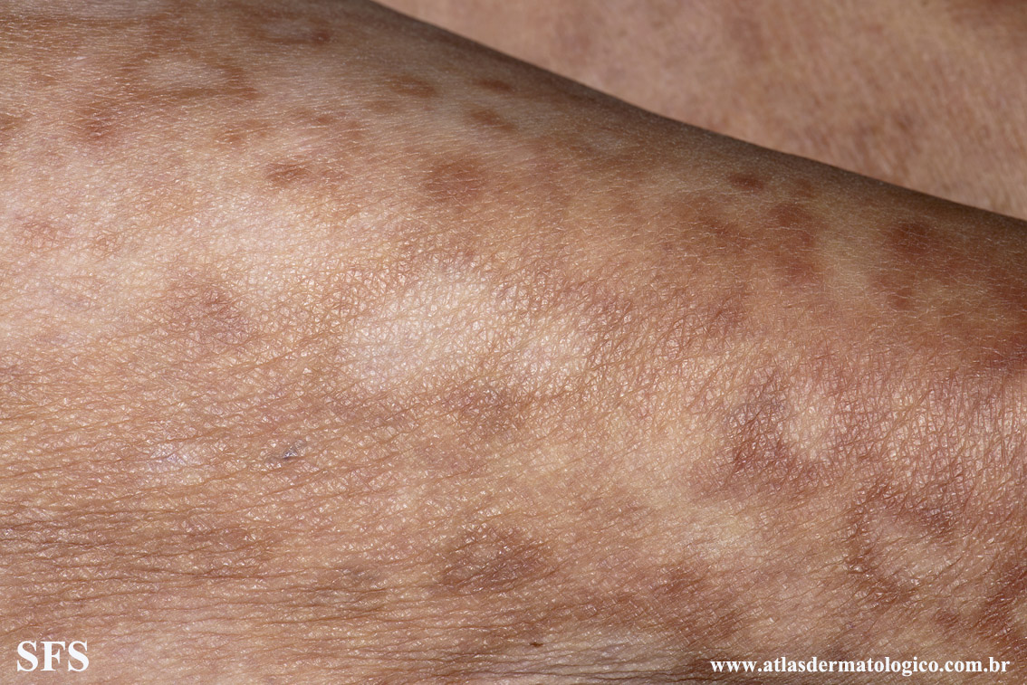 leprosy borderline(leprosy_borderline88.jpg)