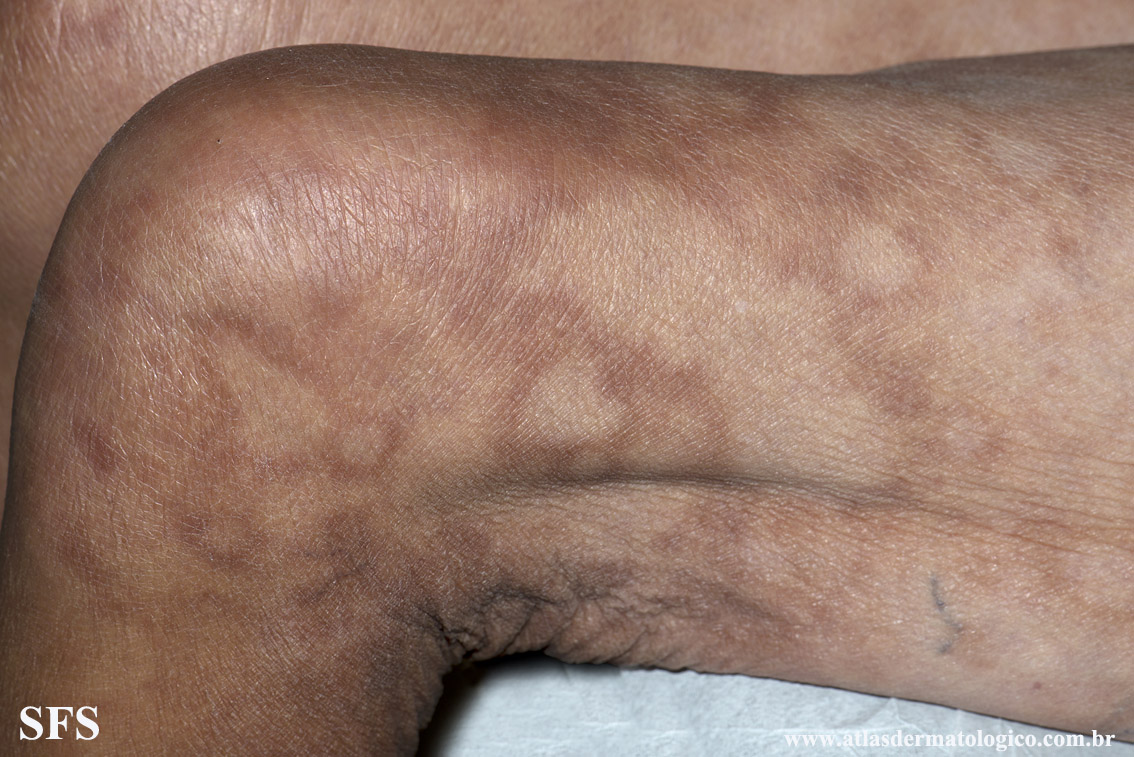 leprosy borderline(leprosy_borderline90.jpg)