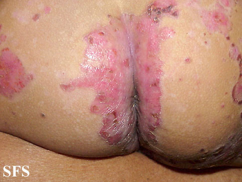 acrodermatitis enteropathica