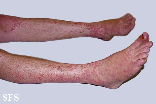 allergic vasculitis