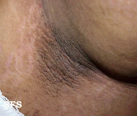 pseudo-acanthosis nigricans