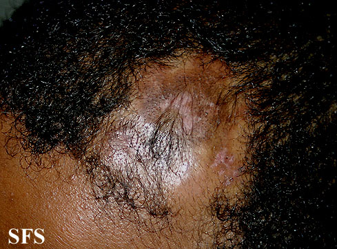 syringolymphoid hyperplasia with alopecia