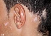 alopecia_areata_and_vitiligo
