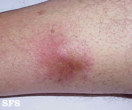 mycobacterial infections-atypical