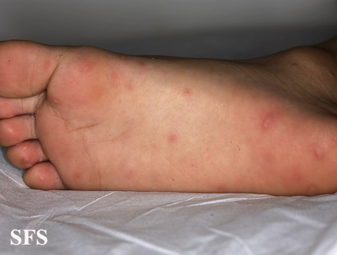 hand-food-and-mouth disease(hand-food-and-mouth_disease31.jpg)