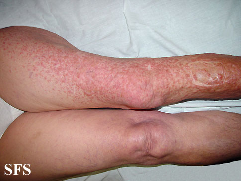 leiomyoma-multiple cutaneous leiomyomas(leiomyoma-multiple_cutaneous_leiomyomas1.jpg)