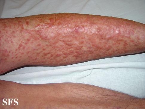 leiomyoma-multiple cutaneous leiomyomas(leiomyoma-multiple_cutaneous_leiomyomas6.jpg)