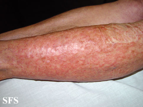 leiomyoma-multiple cutaneous leiomyomas(leiomyoma-multiple_cutaneous_leiomyomas7.jpg)