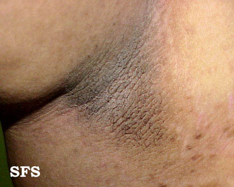 pseudo-acanthosis nigricans(pseudo-acanthosis_nigricans1.jpg)