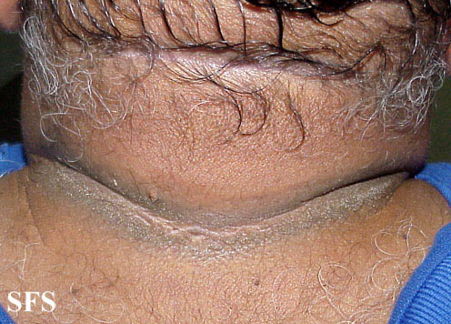 pseudo-acanthosis nigricans(pseudo-acanthosis_nigricans3.jpg)