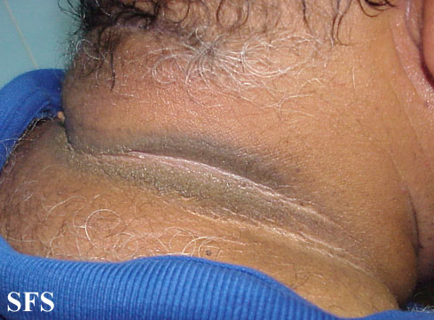 pseudo-acanthosis nigricans(pseudo-acanthosis_nigricans4.jpg)