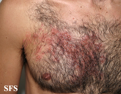 herpes zoster(herpes_zoster36.jpg)