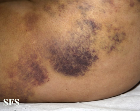painful bruising syndrome
