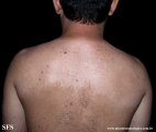 acquired hypomelanosis-hypopigmentation after sympathectomy