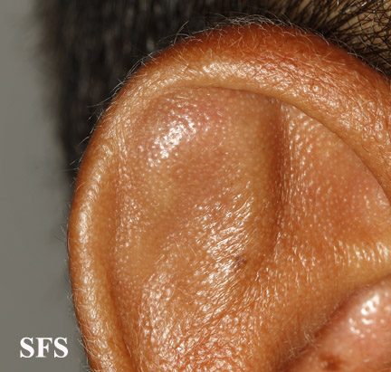 pseudocyst of the ear
