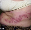 herpes zoster-varicella