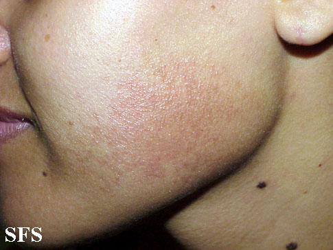 erythromelanosis follicularis of the face