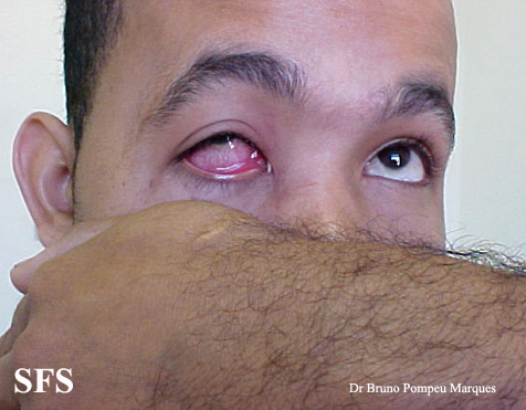 gonorrhea-gonococal conjunctivitis(gonorrhea-gonococal_conjunctivitis1.jpg)