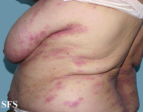 mycosis fungoides(mycosis_fungoides5.jpg)