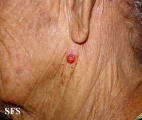 basal cell carcinoma