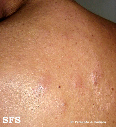 lymphocytoma cutis(lymphocytoma_cutis6.jpg)